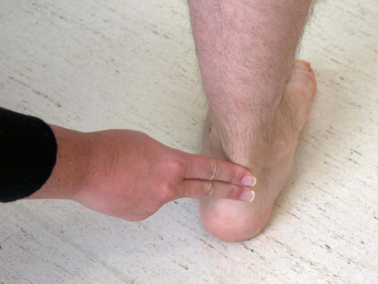 Острая Боль В Суставах Пальцев Ног